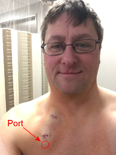 Smartport in my upper right chest